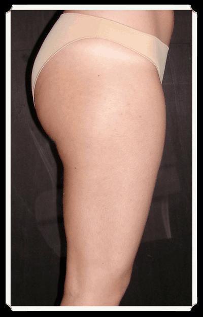 Liposuzione interno coscia 28 images riduzione for Interno coscia grosso