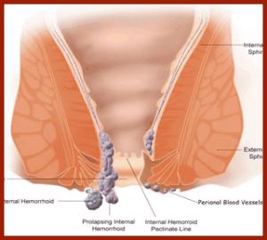 Come ridurrà il dolore a emorroidi a donne incinte