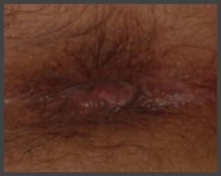 Paraproktit o fistula rettale