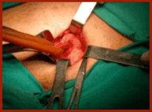 """(E' evidente la rete protesica ben alloggiata, """"caricato"""" dal tubicino di gomma si vede il funicolo spermatico in cui decorrono il dotto deferente e i  vasi)."""